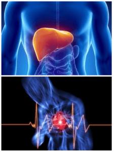 Cardiac angina and hepatic failure